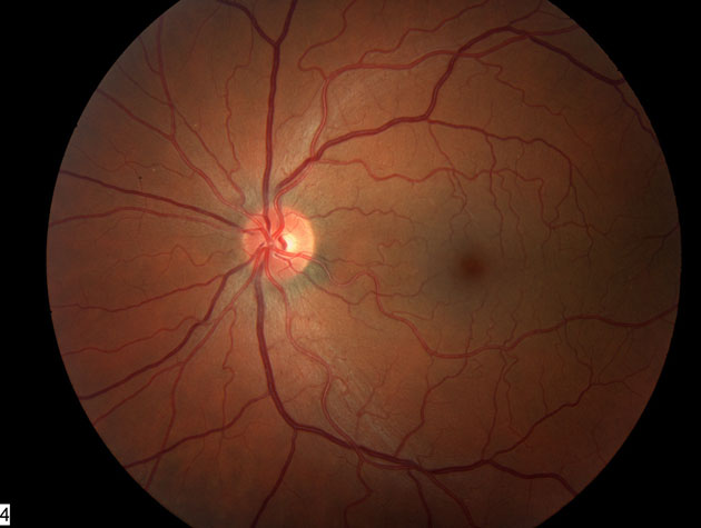 The Eye Defects Research Foundation Macular Degeneration